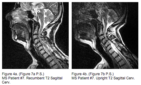 Breakthrough MRI scans